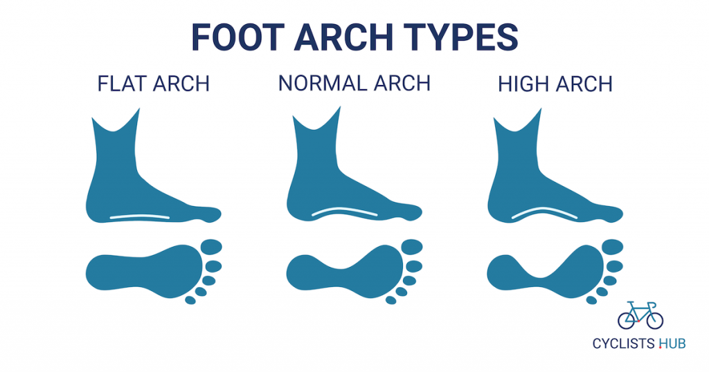 foot arch types - flat arch, normal arch, high arch
